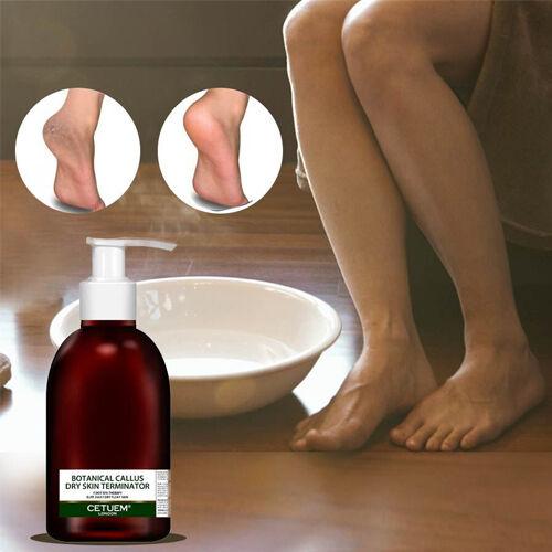Cetuem: Botanical Callus Dry Skin Terminator - 150ml (Free Hydrating Foot Cream - 100ml)