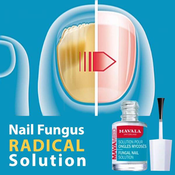 Mavamed: Nail Fungal Treatment - 5ml